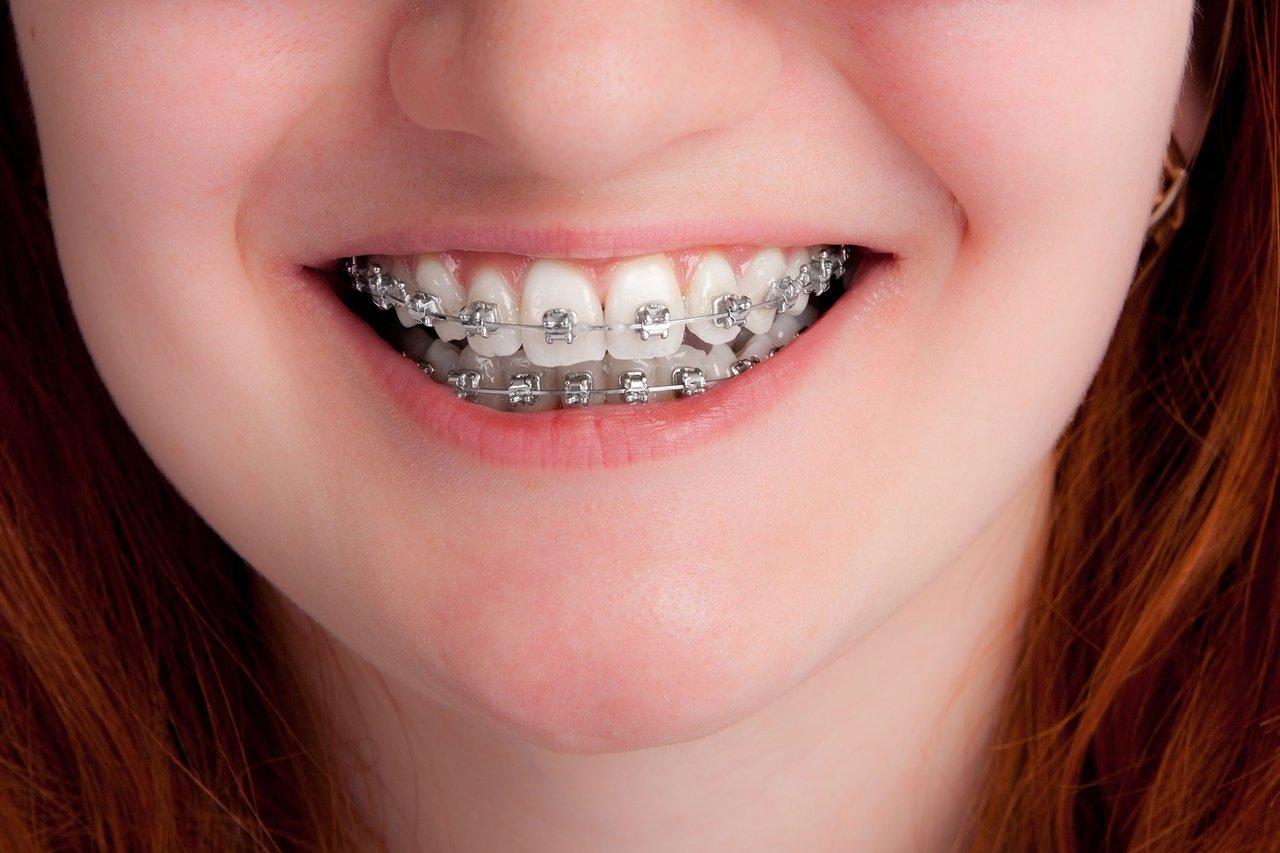 बाहर निकले हुए दांतों को अंदर और