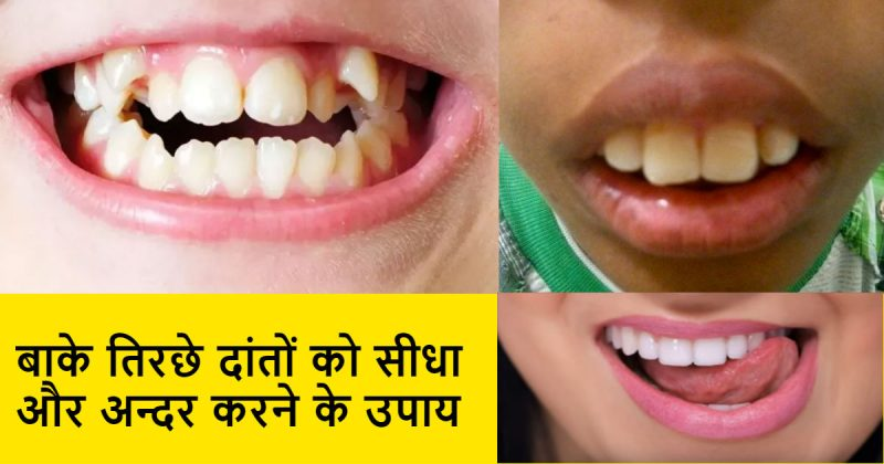 दांतों को