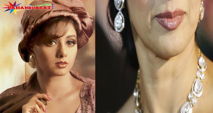 लिप सर्जरी ने बिगाड़ा श्री देवी का चेहरा, तस्वीरें है गवाह