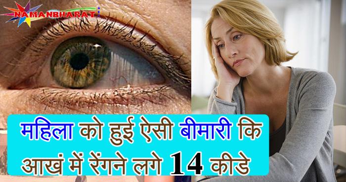 महिला को हुई ऐसी बीमारी कि आंख में एक साथ रेंगने लगे 14 कीड़े, जरूर जाने आखिर कौन सी है ये खतरनाक बीमारी